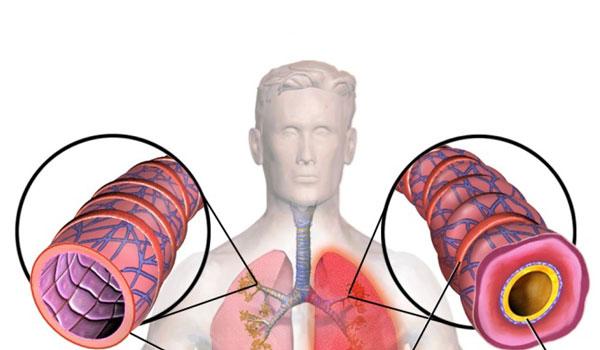 Воспаленный дыхательный путь