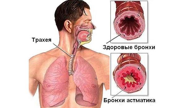 Бронхи здорового и больного человека