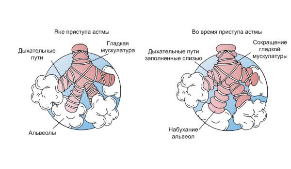 Состояние альвеол в спокойном состоянии и во время кашля