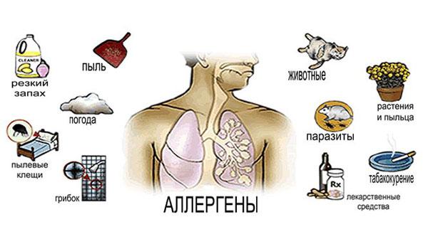 Аллергены - причина развития бронхиальной астмы