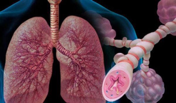 Персистирующая форма бронхиальной астмы
