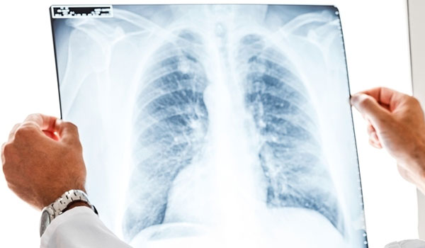 Рентген дыхательных путей
