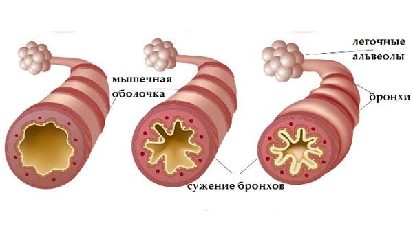 Развитие астматического приступа