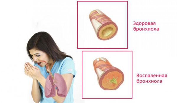 Состояние бронхов во время астмы