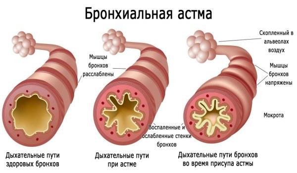 Что происходит при бронхиальной астме