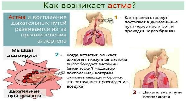 Как возникает астма