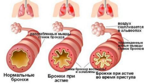 Как снять спазмы при обструктивном бронхите
