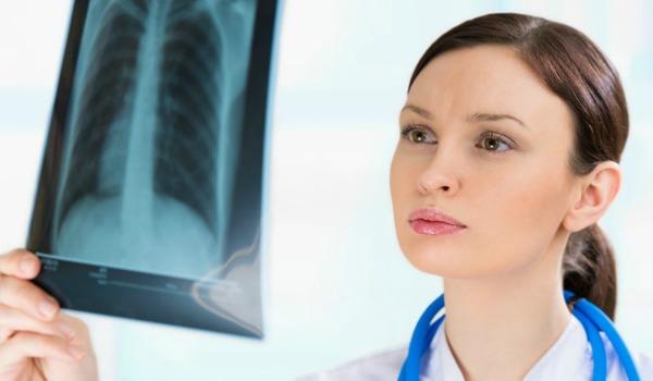 Какие могут быть последствия после пневмонии у детей?