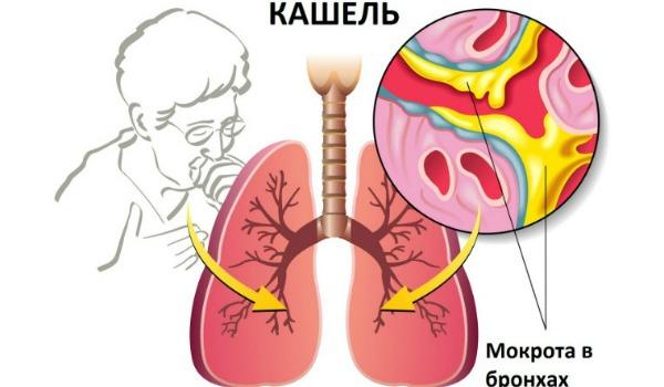 Какой кашель при певмонии