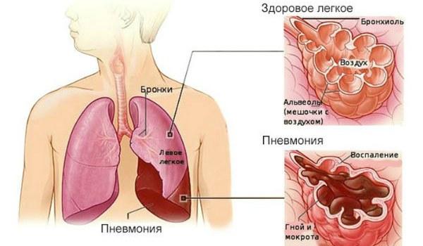 Особенности течения вирусной пневмонии