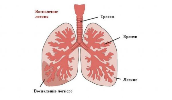 Особенности деструктивной формы воспаления легких