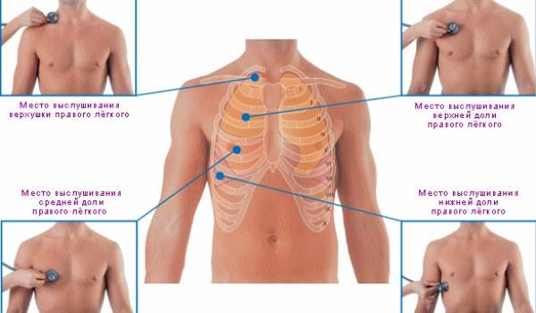 Как распознать пневмонию: эффективные методы диагностики