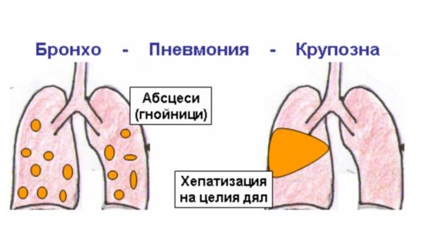 Особенности протекания крупозной пневмонии