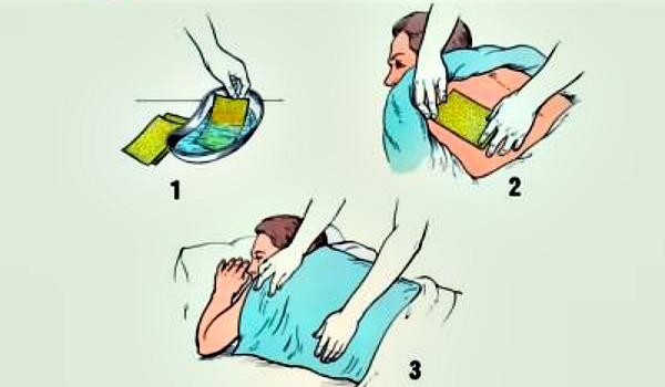 Эффективны ли горчичники при пневмонии
