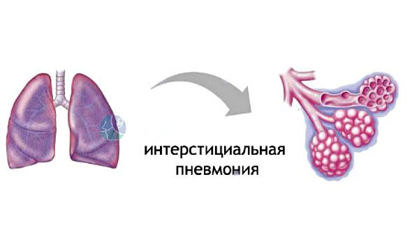 Интерстициальная форма воспаления легких: как вовремя распознать коварную болезнь