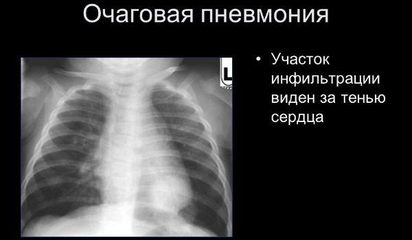 Особенности течения и лечебная тактика очаговой формы пневмонии