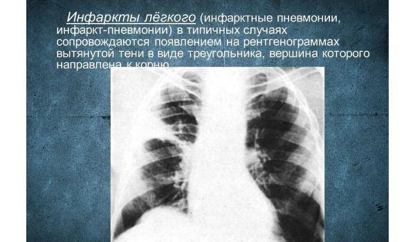 Инфаркт легкого: описание болезни и методы лечения