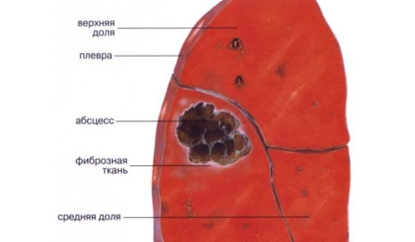 Абсцесс легкого: симптоматика, формы, диагностика и лечение
