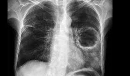 Какие рентгенологические признаки у абсцесса легкого?