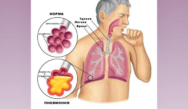 Опасность грибковой пневмонии