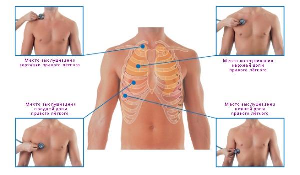 Аускультация как основной метод диагностики при пневмонии