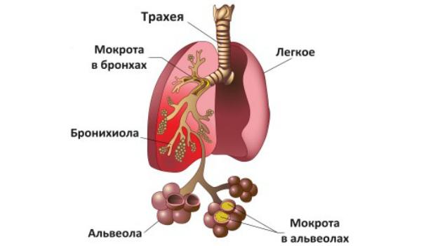 Причины развития аспирационной пневмонии и способы ее лечения