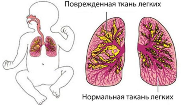 Особенности врожденной пневмонии у новорожденных