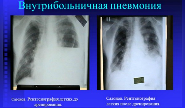 Нозокомиальная пневмония: особенности течения, диагностика и терапия