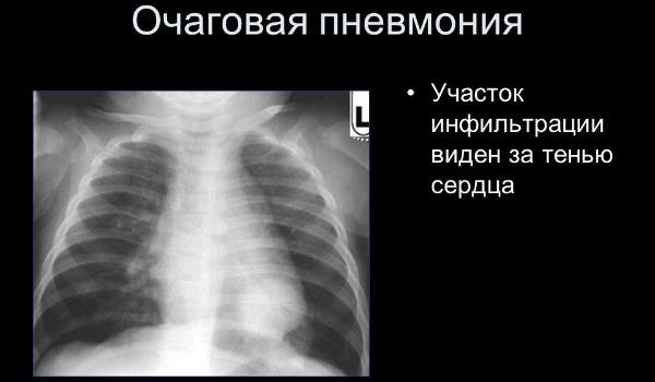 Симптоматика, виды, диагностика и лечение различных видов пневмоний