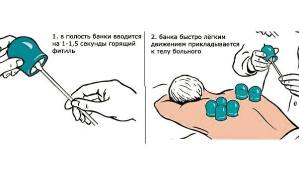 Стоит ли ставить банки при пневмонии